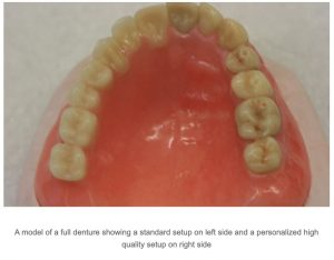 Lower Denture